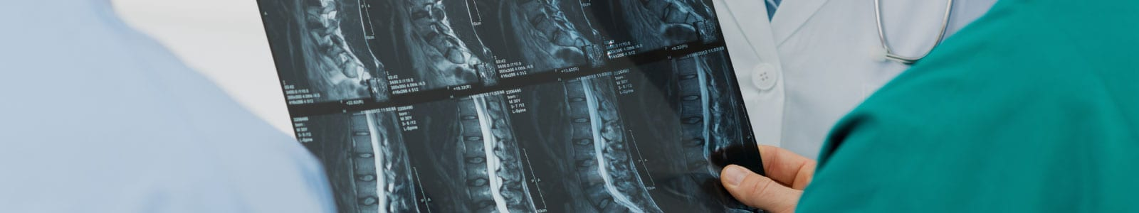 Spinal Cord xrays